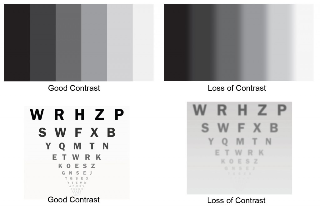 Loss of Contrast